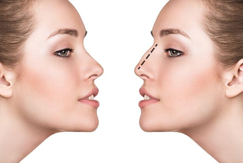 Fotos cirurgia plastica de nariz 96